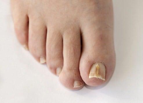 Remedios caseros para la micosis en uñas
