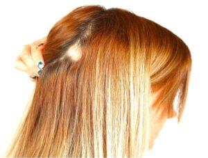 caída del cabello causas