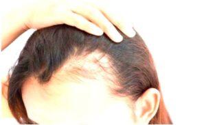 Champú Contra la Alopecia seborreica